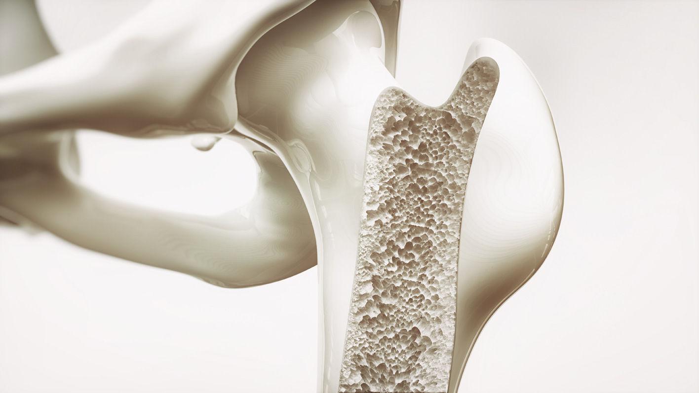 Osteoporose macht Knochen mürbe. Die Schweiz gehört zu den Ländern, in denen wegen dieser Erkrankung die meisten Knochen brechen.
