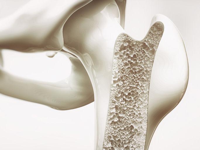 teaserbox_osteoporose.jpg