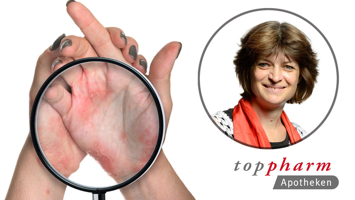 Tipps der Apothekerin bei Psoriasis / TopPharm Apotheke / Ihr Gesundheits-Coach