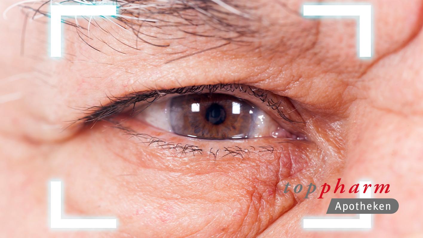 TopPharm Apotheke / Best Agers / Im Blickpunkt: Häufige Augenkrankheiten