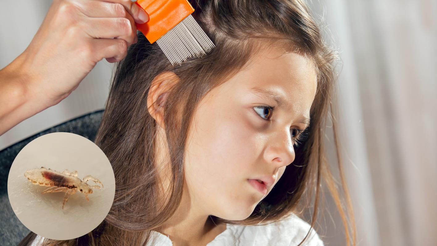 Von Nissen und Kopfläusen sind hauptsächlich Kinder betroffen – beginnen Sie bei einem Befall umgehend mit der Behandlung mit einem geeigneten Lausmittel